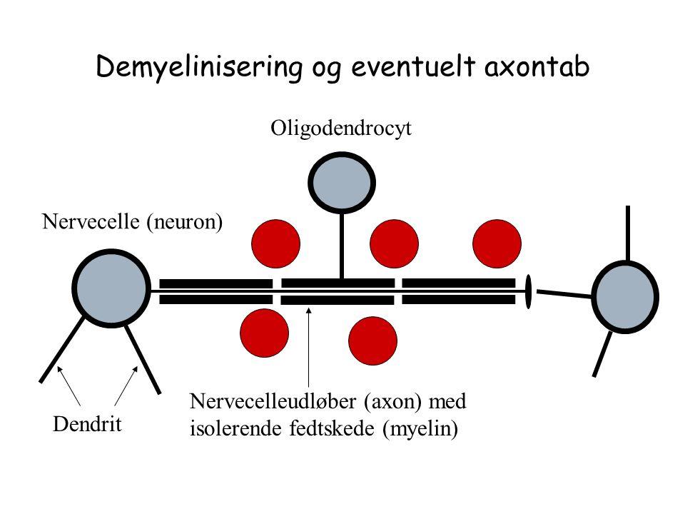 Demyelinisering og eventuelt axontab