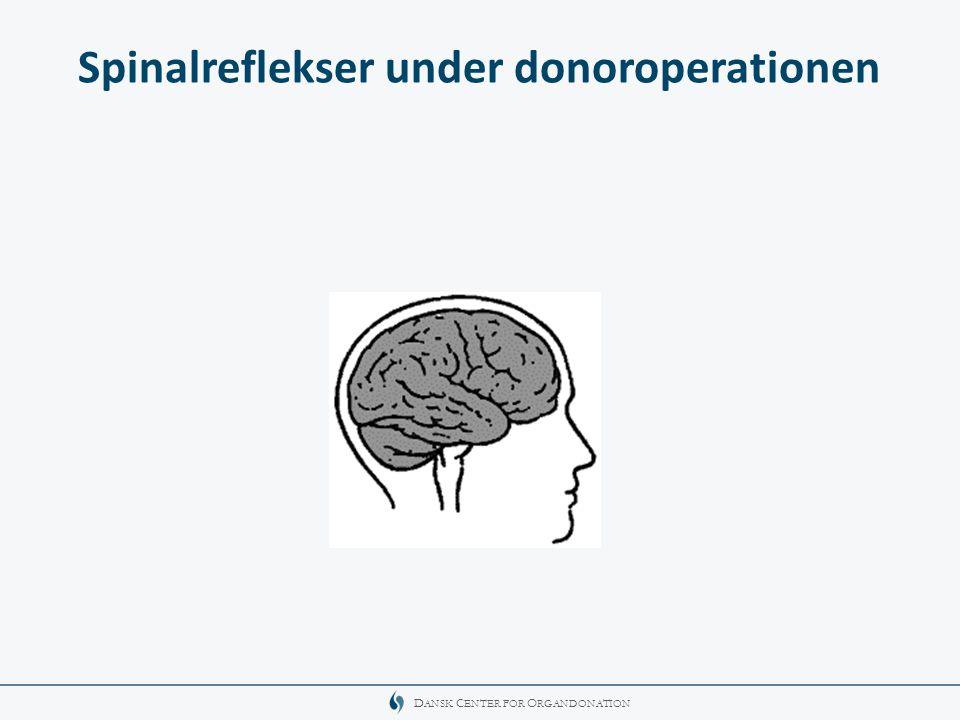 Spinalreflekser under donoroperationen