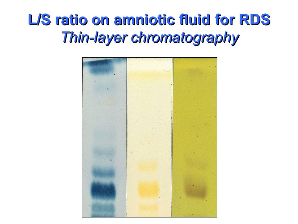 L/S ratio on amniotic fluid for RDS Thin-layer chromatography