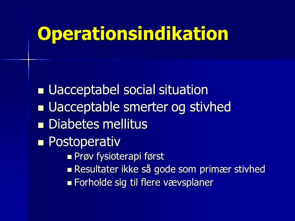 Operationsindikation