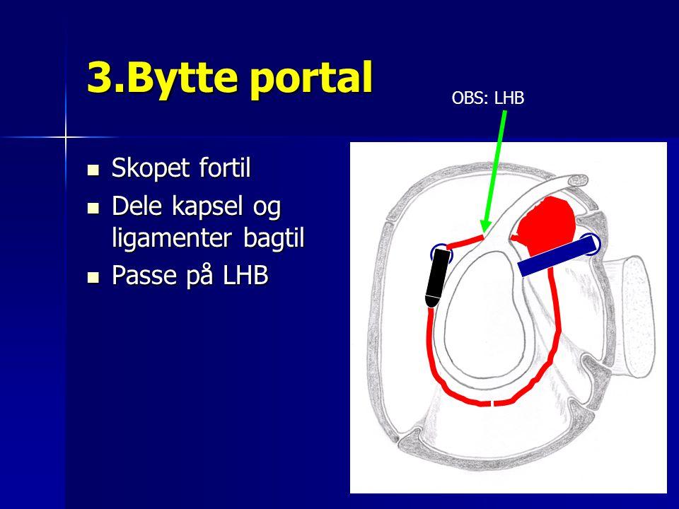 3.Bytte portal Skopet fortil Dele kapsel og ligamenter bagtil
