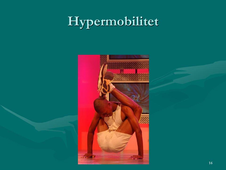 Hypermobilitet