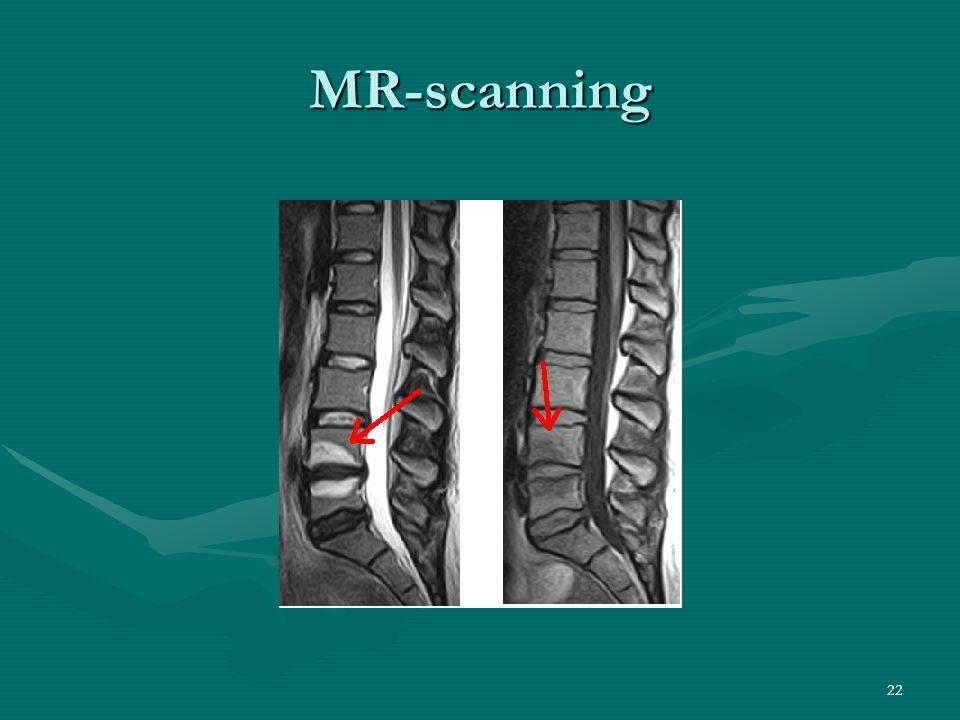 MR-scanning