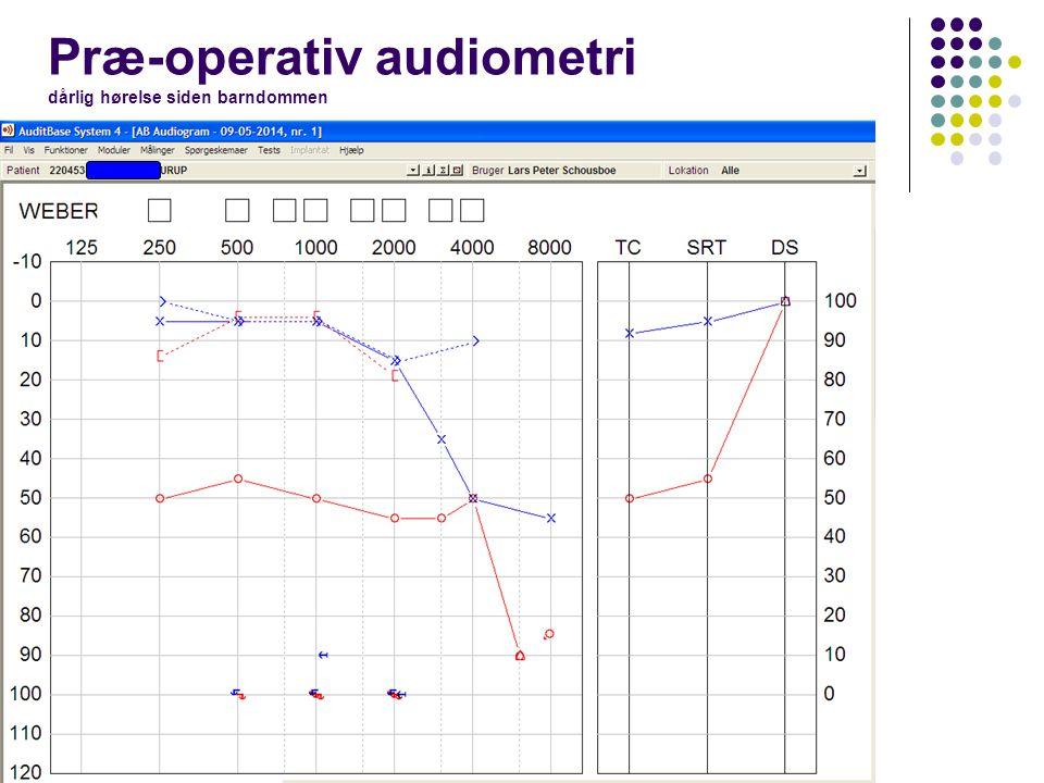 Præ-operativ audiometri dårlig hørelse siden barndommen