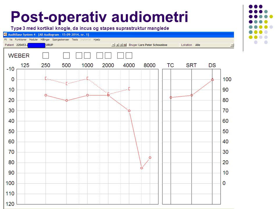 Post-operativ audiometri Type 3 med kortikal knogle, da incus og stapes suprastruktur manglede