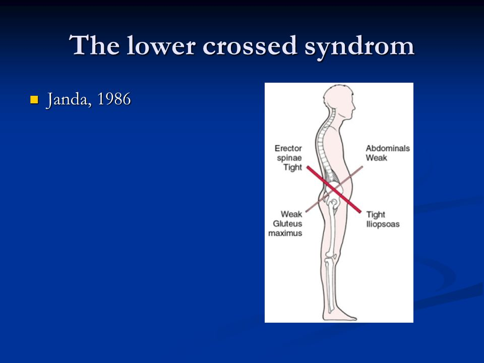 The lower crossed syndrom
