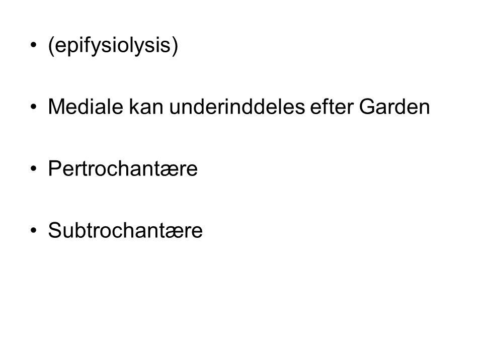 (epifysiolysis) Mediale kan underinddeles efter Garden Pertrochantære Subtrochantære