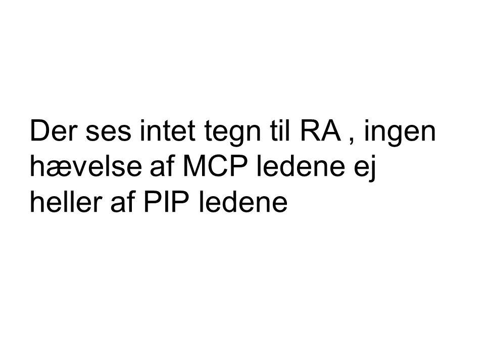 Der ses intet tegn til RA , ingen hævelse af MCP ledene ej heller af PIP ledene