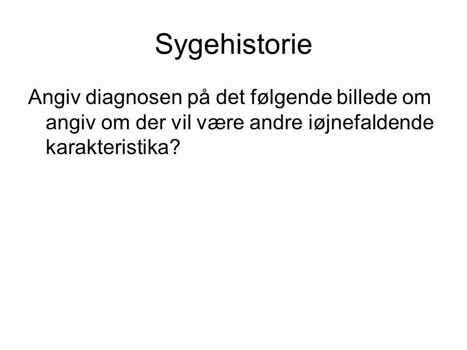 Sygehistorie Angiv diagnosen på det følgende billede om angiv om der vil være andre iøjnefaldende karakteristika