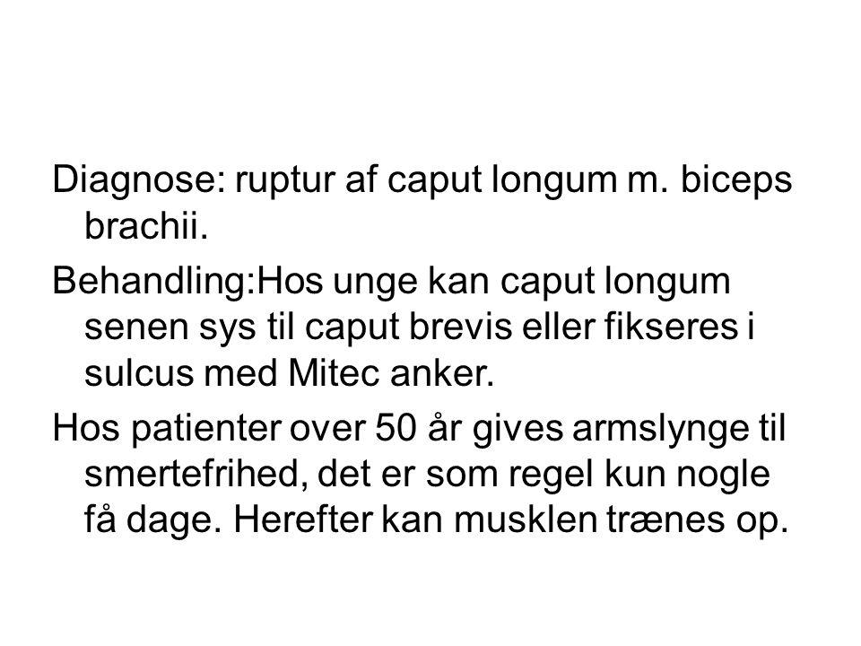Diagnose: ruptur af caput longum m. biceps brachii.