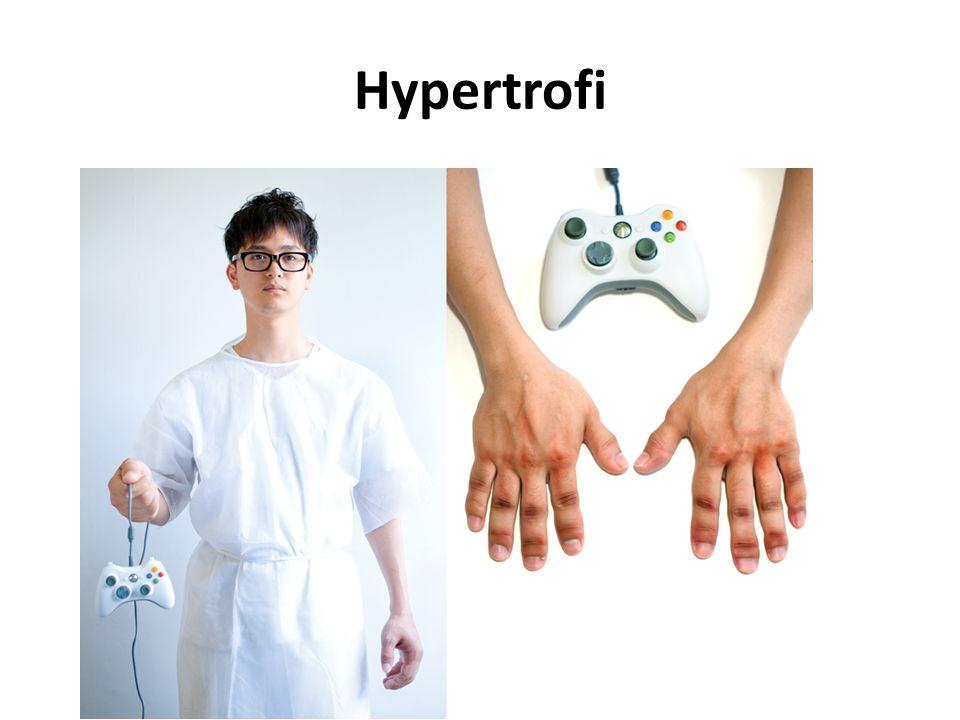 Hypertrofi Billedet er en spøg!