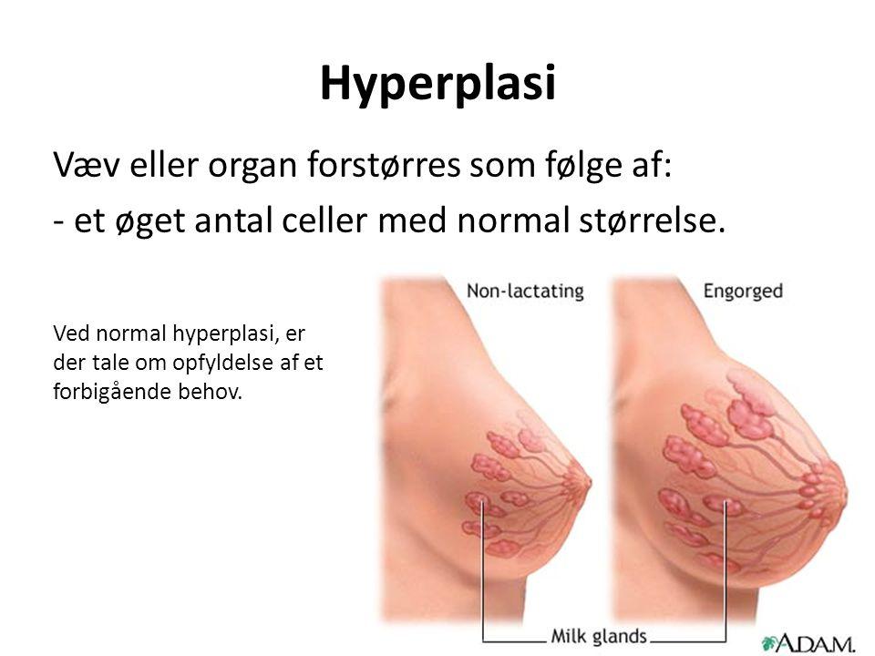 Hyperplasi Væv eller organ forstørres som følge af: - et øget antal celler med normal størrelse.