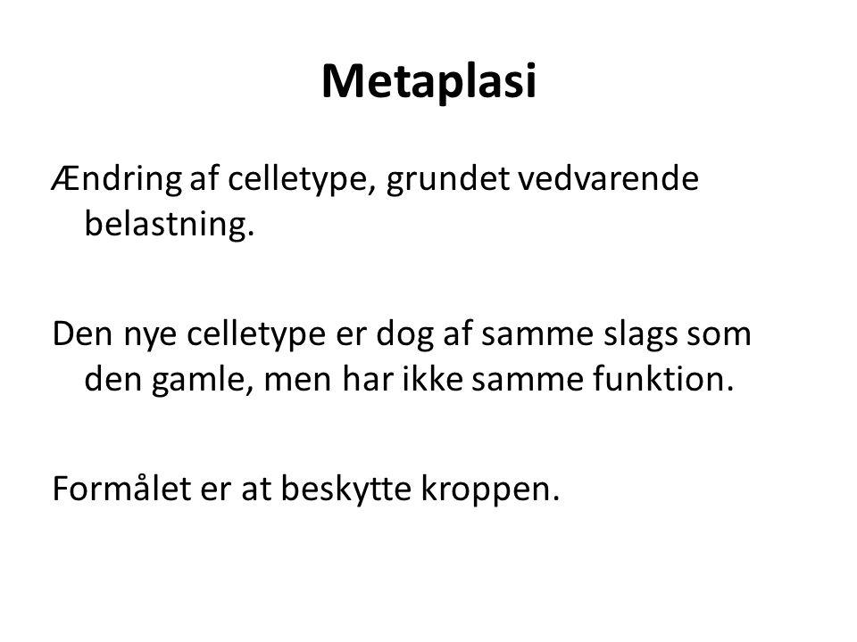 Metaplasi