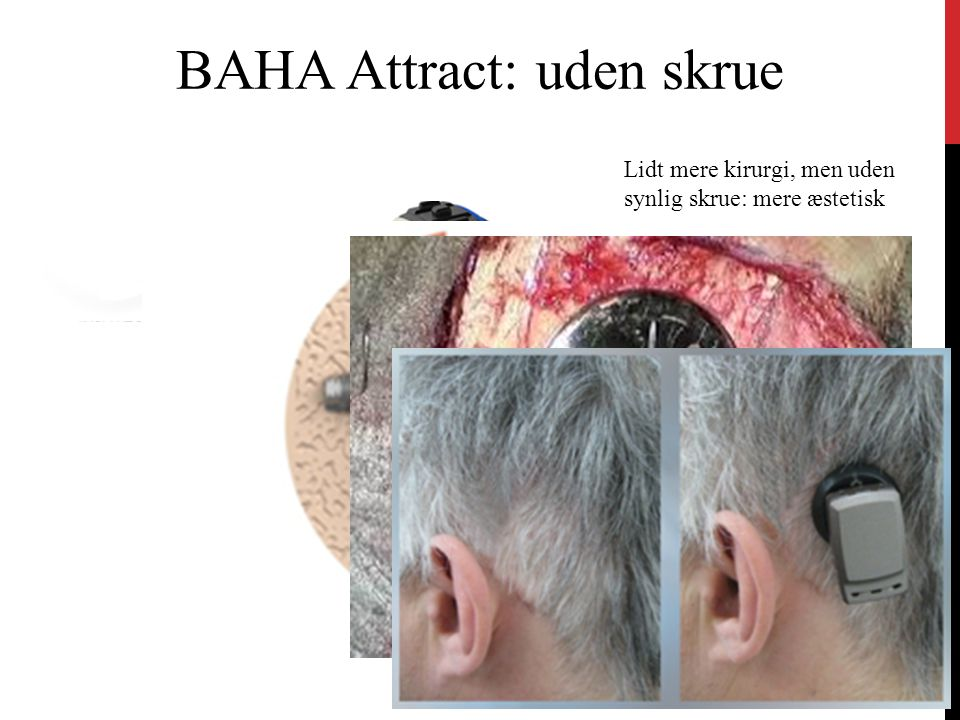 BAHA Attract: uden skrue