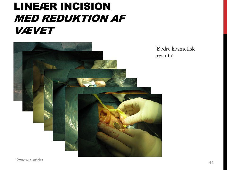 Lineær incision Med reduktion af vævet