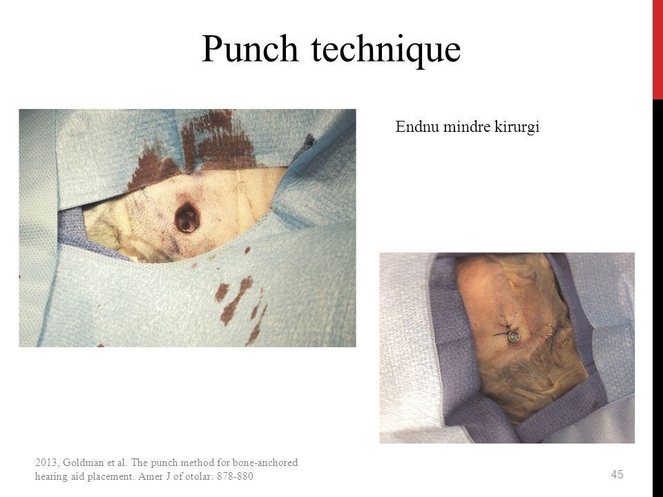 Punch technique Endnu mindre kirurgi