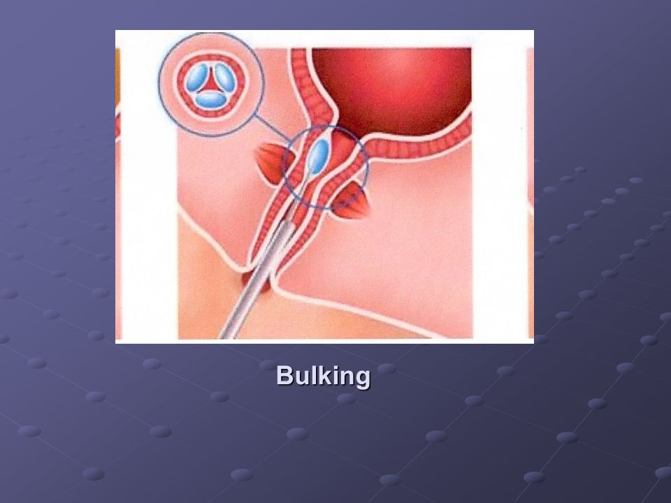 brystoperation Den prolaps af uterus efter fødslen