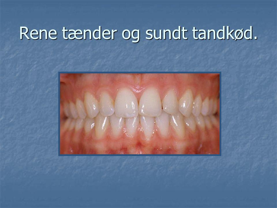 Rene tænder og sundt tandkød.