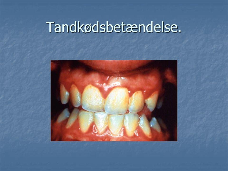 Tandkødsbetændelse.