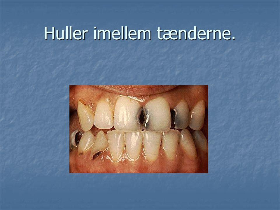 Huller imellem tænderne.