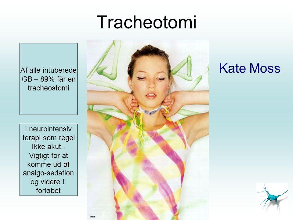 Tracheotomi Kate Moss Af alle intuberede GB – 89% får en tracheostomi