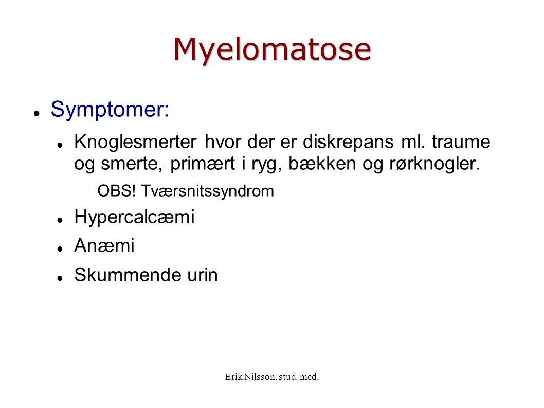 Myelomatose Symptomer: