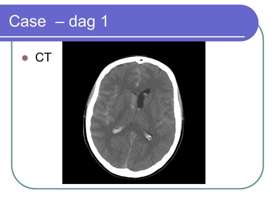 Case – dag 1 CT