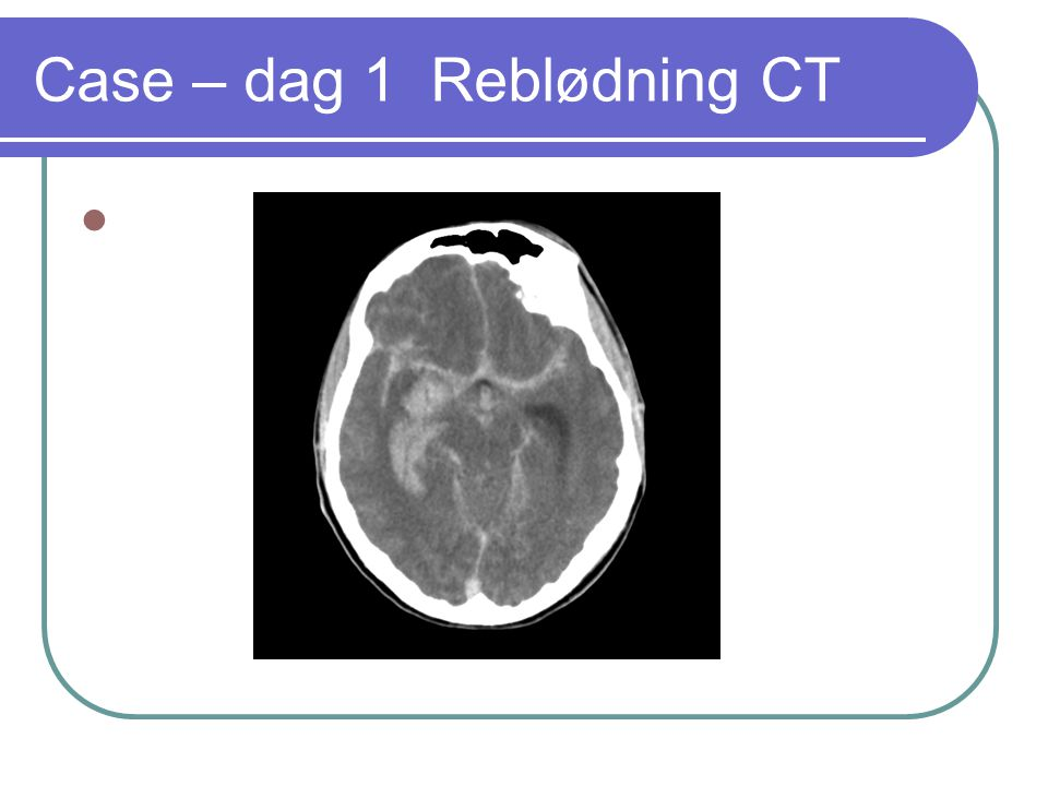 Case – dag 1 Reblødning CT