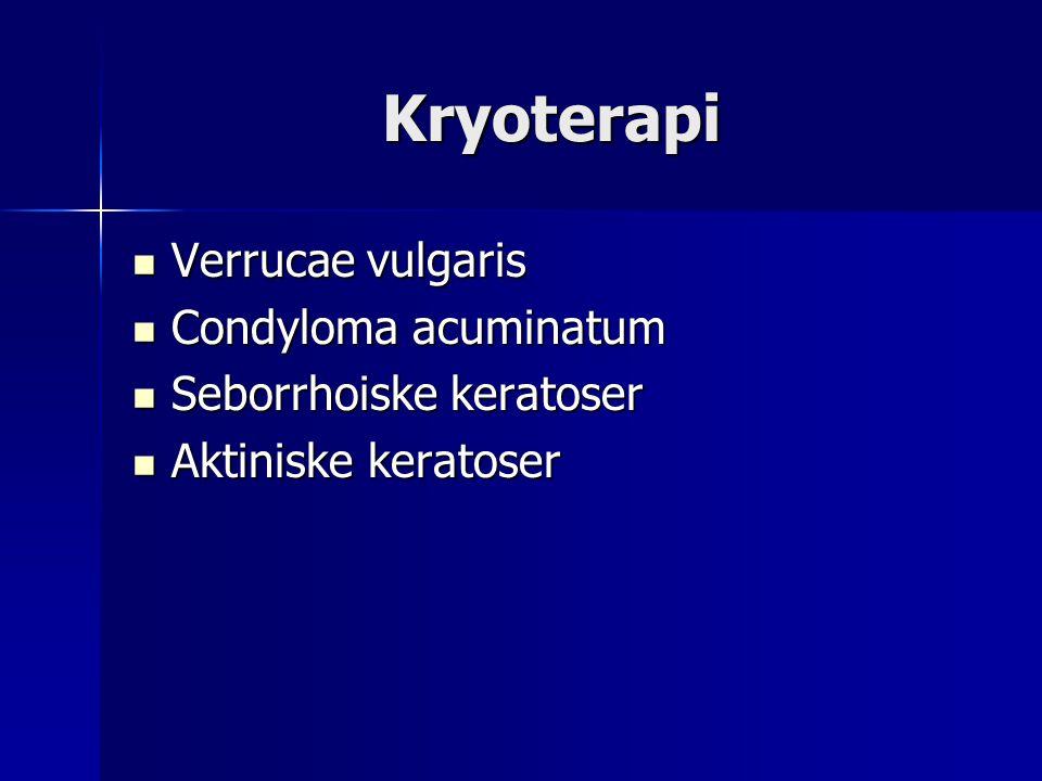 Kryoterapi Verrucae vulgaris Condyloma acuminatum