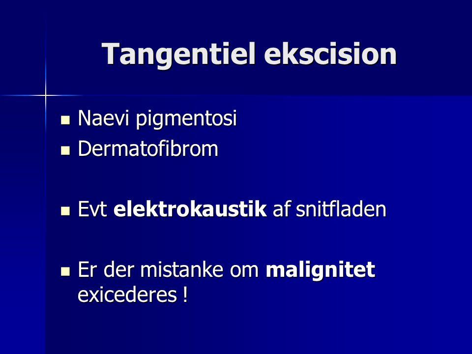 Tangentiel ekscision Naevi pigmentosi Dermatofibrom