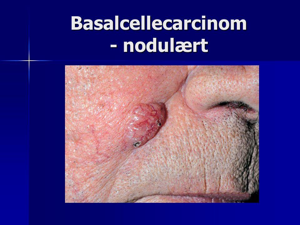 Basalcellecarcinom - nodulært
