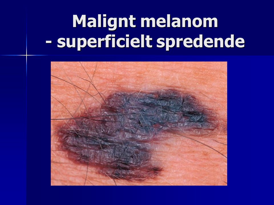 Malignt melanom - superficielt spredende