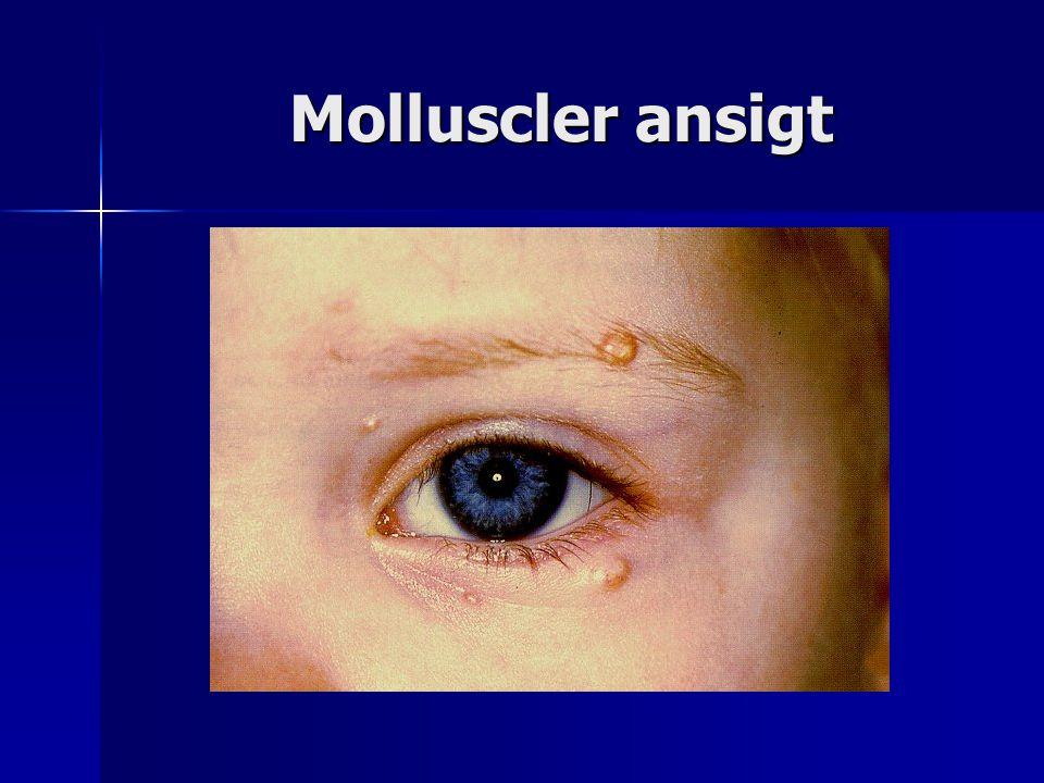 Molluscler ansigt
