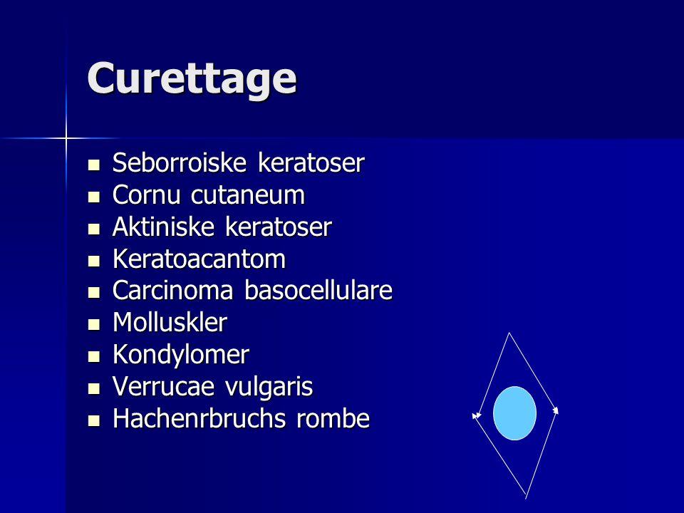 Curettage Seborroiske keratoser Cornu cutaneum Aktiniske keratoser