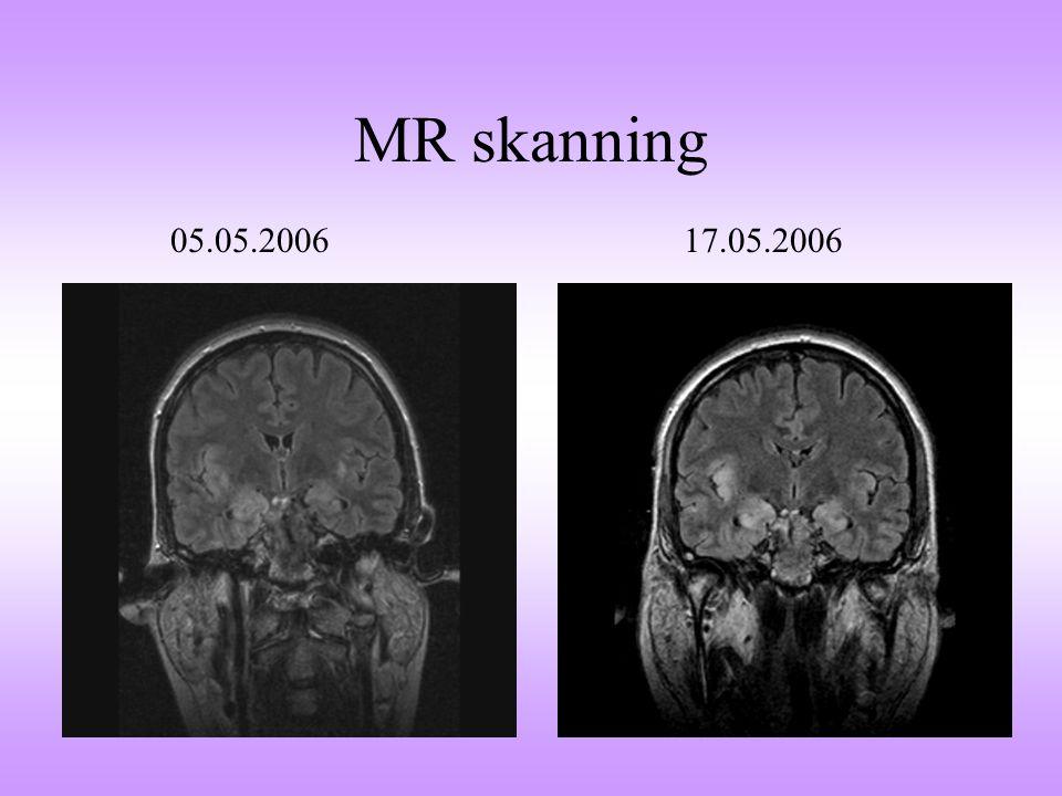 MR skanning 05.05.2006 17.05.2006