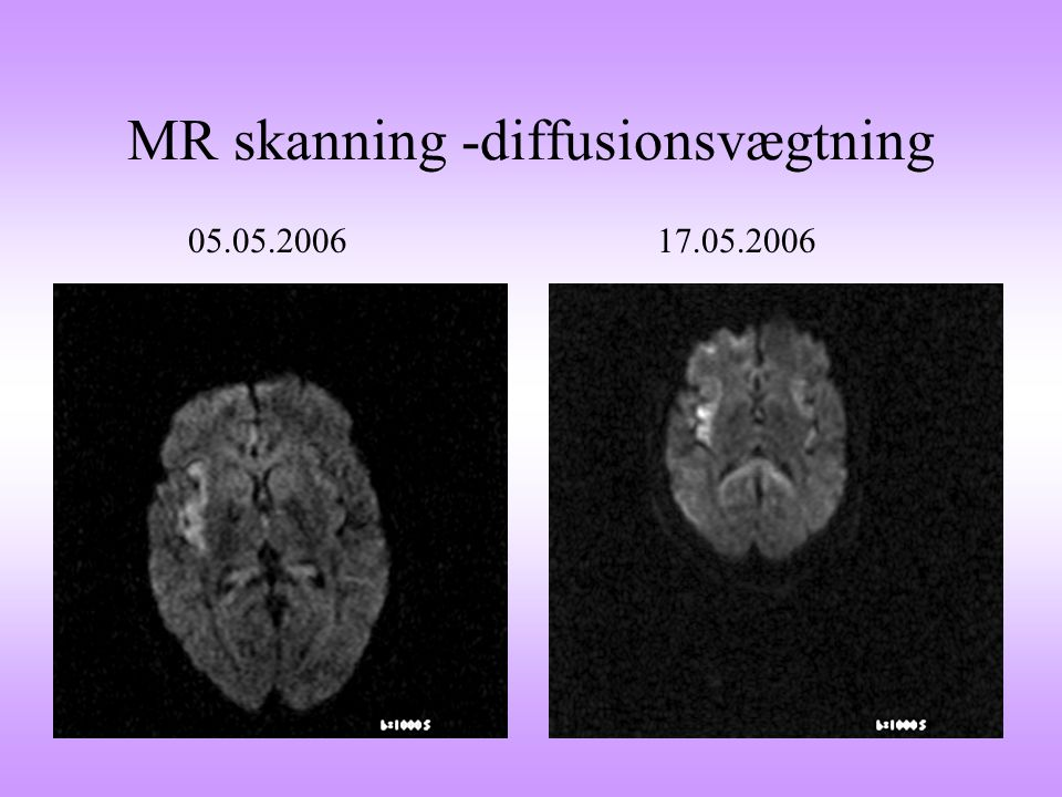 MR skanning -diffusionsvægtning