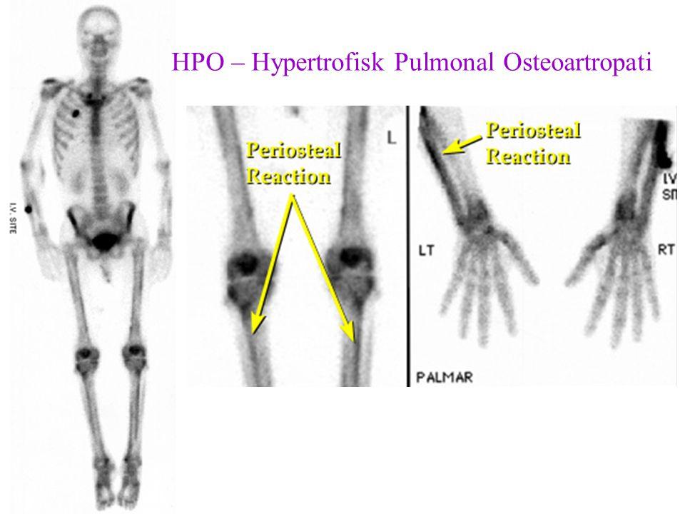 HPO – Hypertrofisk Pulmonal Osteoartropati