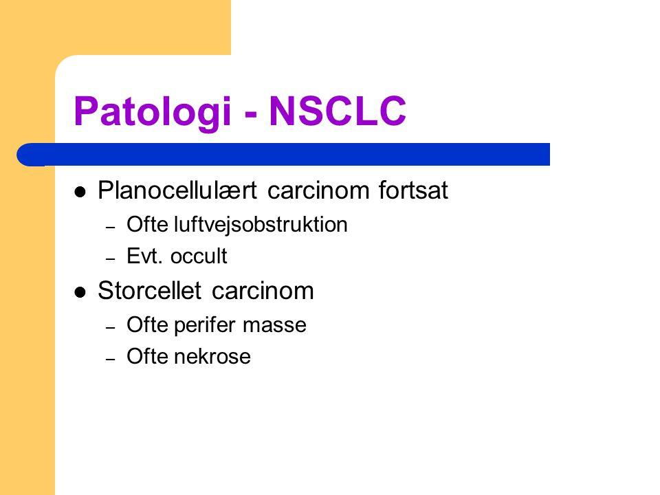 Patologi - NSCLC Planocellulært carcinom fortsat Storcellet carcinom