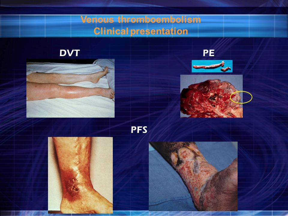 Venous thromboembolism Clinical presentation
