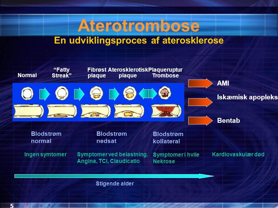 En udviklingsproces af aterosklerose