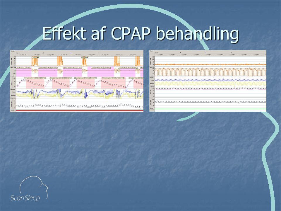 Effekt af CPAP behandling