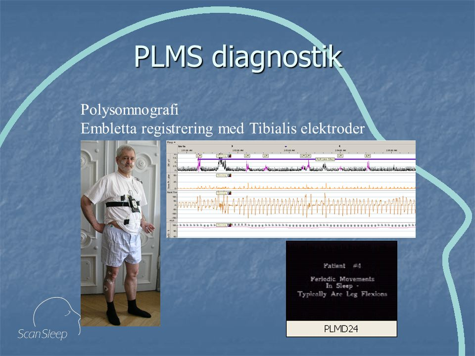 PLMS diagnostik Polysomnografi