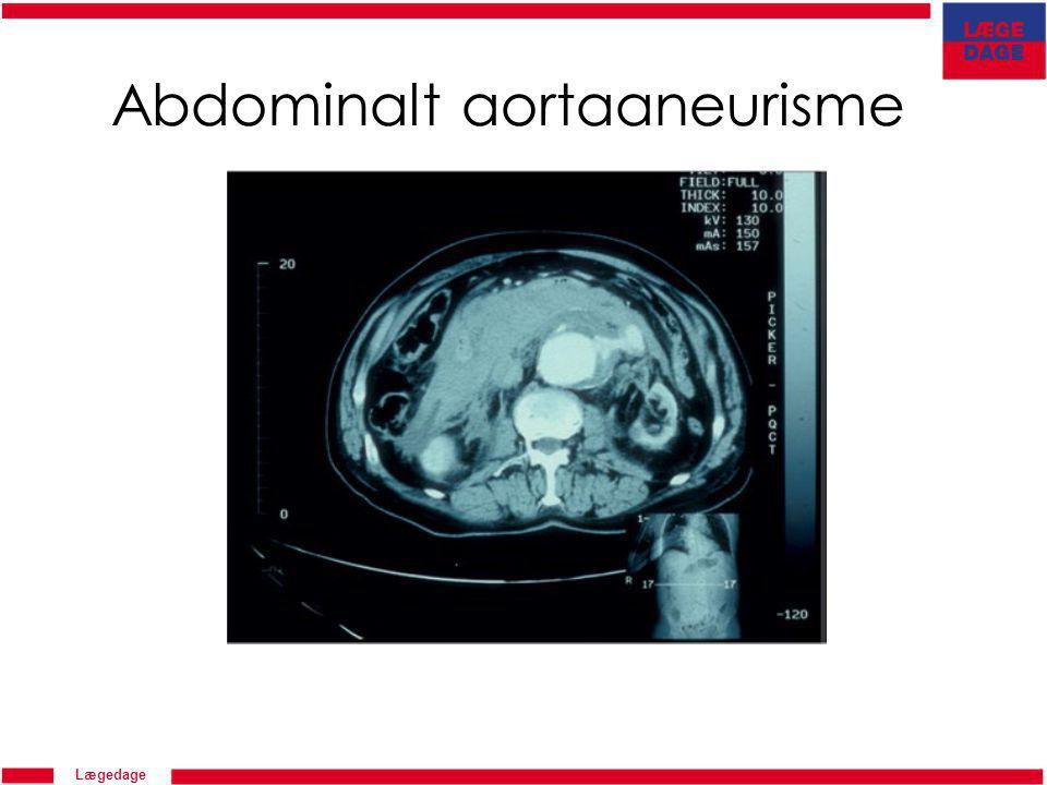 Abdominalt aortaaneurisme