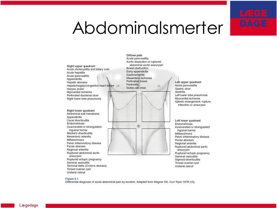 Abdominalsmerter
