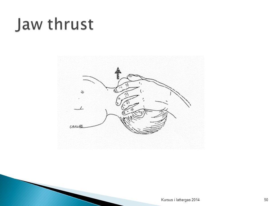 Jaw thrust Tommelfingrene presser underkæben kaudalt hvorved munden åbnes de øvrige fingre trykker bag rami mandibulae og presser underkæben frem.
