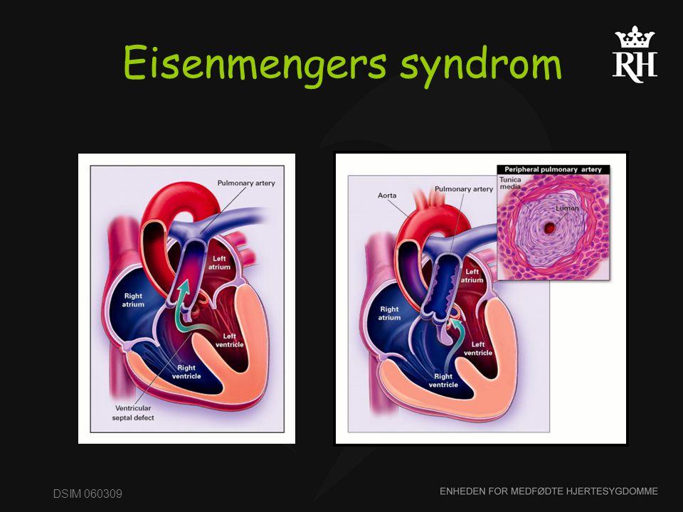 Eisenmengers syndrom