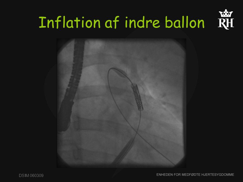 Inflation af indre ballon