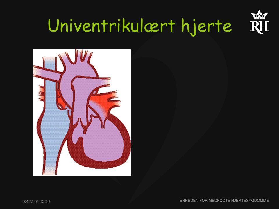 Univentrikulært hjerte
