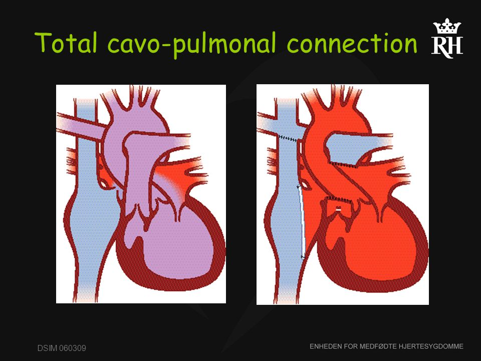 Total cavo-pulmonal connection