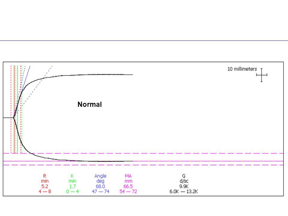Normal TEG® Profil Normal Normal kurve aktiveret med kaolin